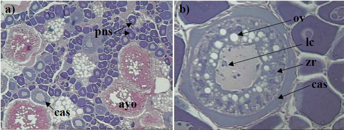 Figure 3. a) Histological section of the ovary from a female King George whiting collected in May that was classified as macroscopic stage 3 (magnification x 100), b) close up of a cortical alveoli or developing oocyte stage (magnification x 250).